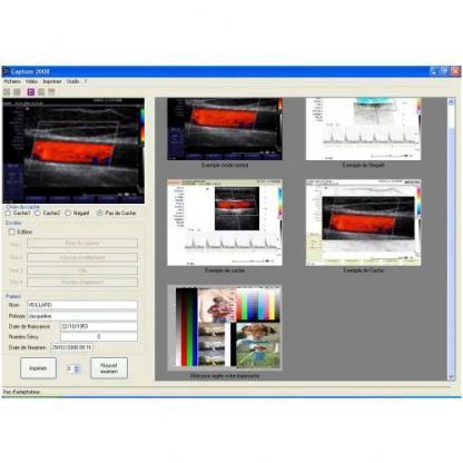 logiciel d'image echo-doppler couleur